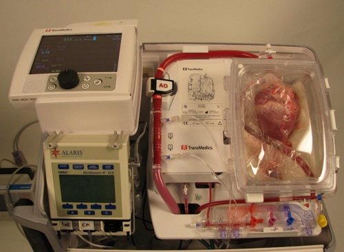 New technology will revolutionise heart transplants The heart transplantation team at Ronald Reagan UCLA Medical Center are currently working on a study which could revolutionise the field. The The Organ Care System (OCS), developed by TransMedics, allows